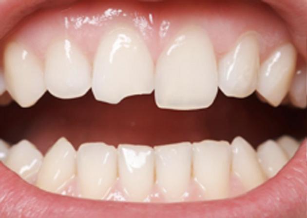 Cosmetic Bonding  - Simply Dental, Carol Stream Dentist