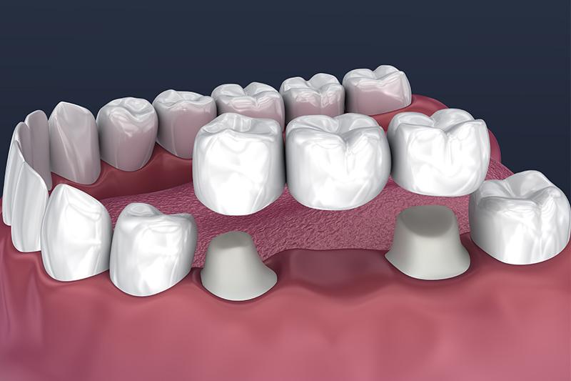 Crowns and Bridges, Inlays and Onlays  - Simply Dental, Carol Stream Dentist
