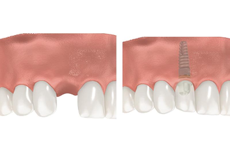 Dental Implants - Simply Dental, Carol Stream Dentist