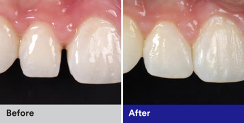 BioClear Diastema Closure and Black Triangle Closure  - Simply Dental, Carol Stream Dentist