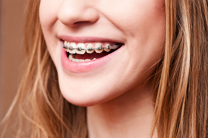 Orthodontics - Simply Dental, Carol Stream Dentist