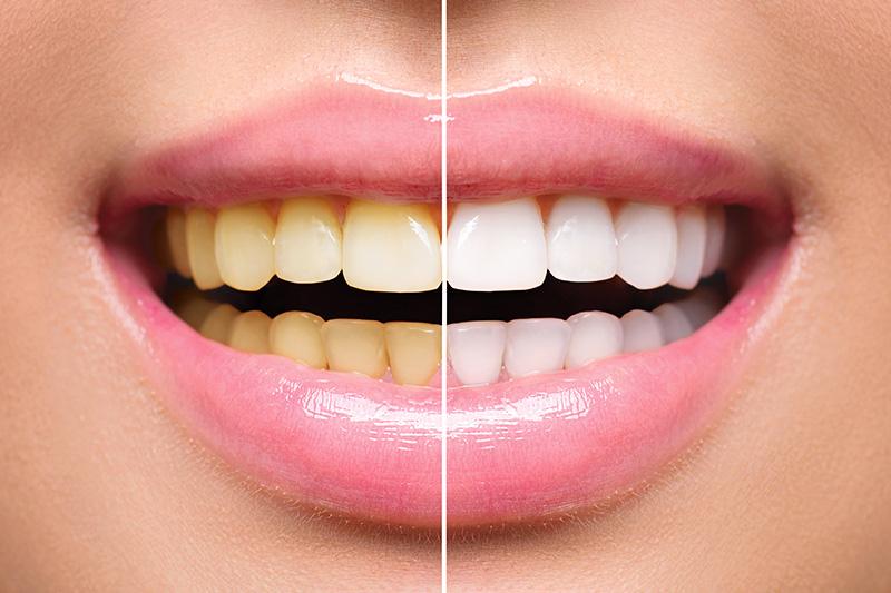 Teeth Whitening - Simply Dental, Carol Stream Dentist
