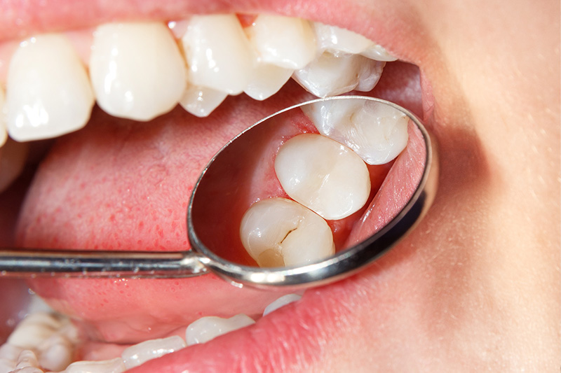 Tooth Colored Composite Fillings  - Simply Dental, Carol Stream Dentist