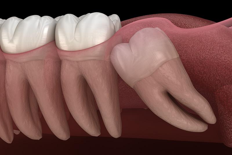 Wisdom Teeth Extractions (with Sedation)  - Simply Dental, Carol Stream Dentist