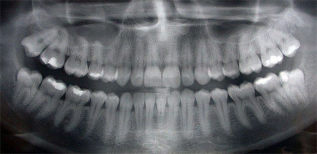 Carol Stream, IL Dentist - Simply Dental - General Dentist